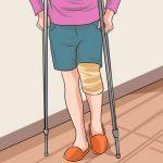 Knie nach Operation